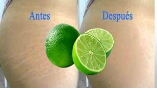 Con estrias como limon eliminar las