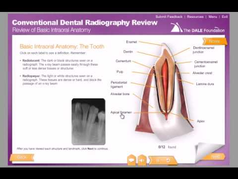 Conventional Dental Radiography Review