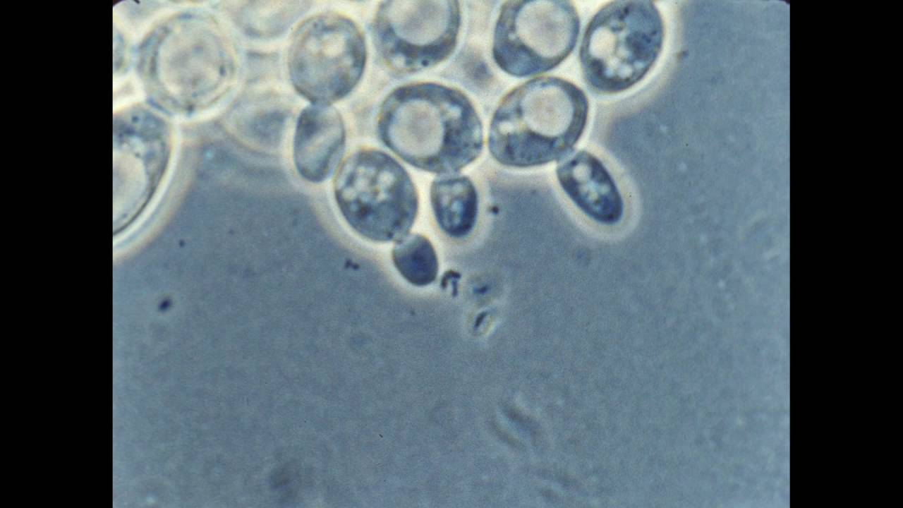 57 Budding Of Yeast Cells Youtube