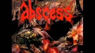 Watch Abscess Death Runs Red video