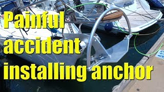accident while installing a new anchor sailing a b sea ep020