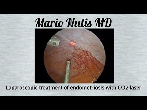 "Live Video Stream ""Laparoscopic treatment of endometriosis with CO2 laser"