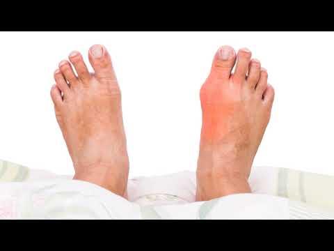 Как быстро снять боль при подагре в домашних условиях