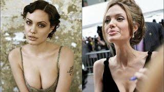 Звезды которые сильно похудели (до и после)
