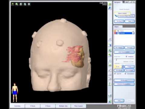 removal of brain tumor meningioma brain surgery youtube