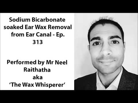 Sodium Bicarbonate soaked Ear Wax Removal from Ear Canal - Ep 313