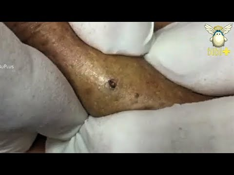 BIG CYST, BLACKHEADS REMOVAL ON THE BACK ACNE TREATMENT 191251!