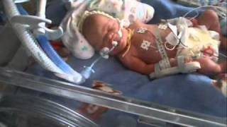 Repeat youtube video Premature baby born at 30 weeks