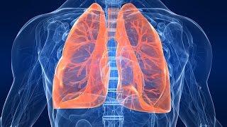 видео Дыхательная гимнастика при пневмонии
