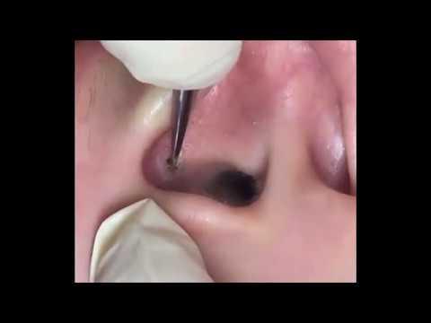 Плотный прыщ в ухе