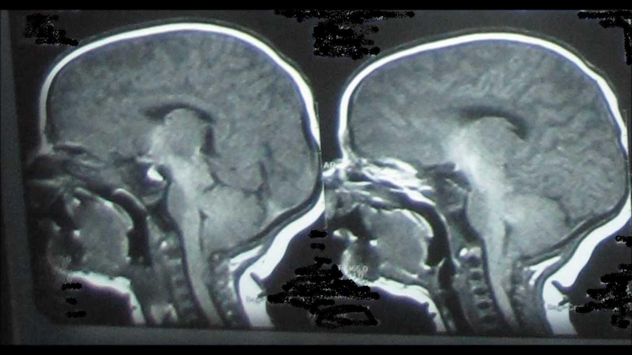 Arnold Chiari Syndrome