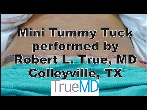 Mini Tummy Tuck Procedure by Dr. Robert L. True