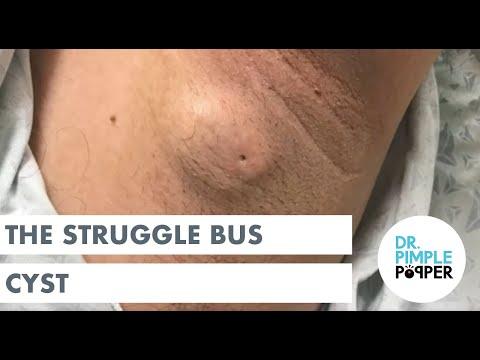 The Struggle Bus Cyst