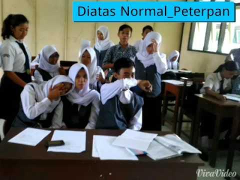 Peterpan-_-Diatas Normal