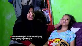 TERNYATA - Meldy Melihat Kondisi Ibu Leli Yang Miliki Anak Pengidap Penyakit Lupus (6/8/19) Part 1