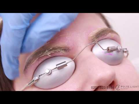 Laser Eyebrow Tattoo Removal Procedure Treatment with PicoWay Pulse Light Clinic
