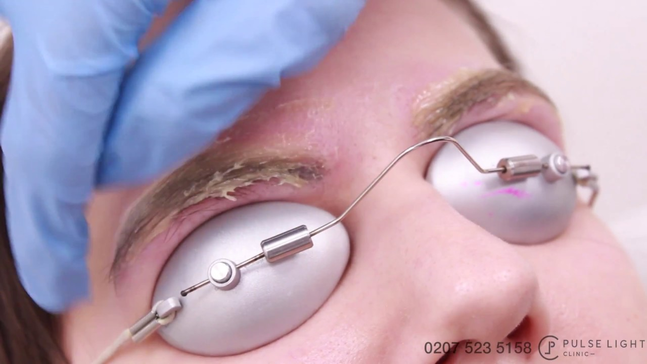 Laser Eyebrow Tattoo Removal Procedure Treatment With Picoway Pulse