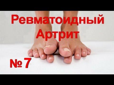 Лечение артроза голеностопного сустава, народные средства