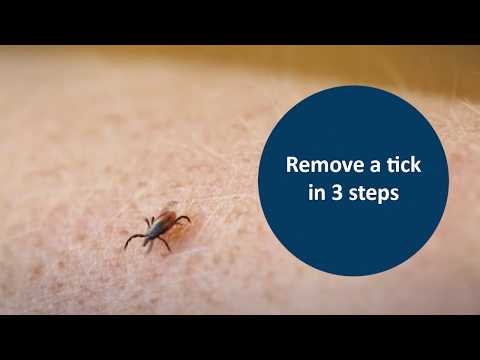 Remove A Tick In 3 Steps