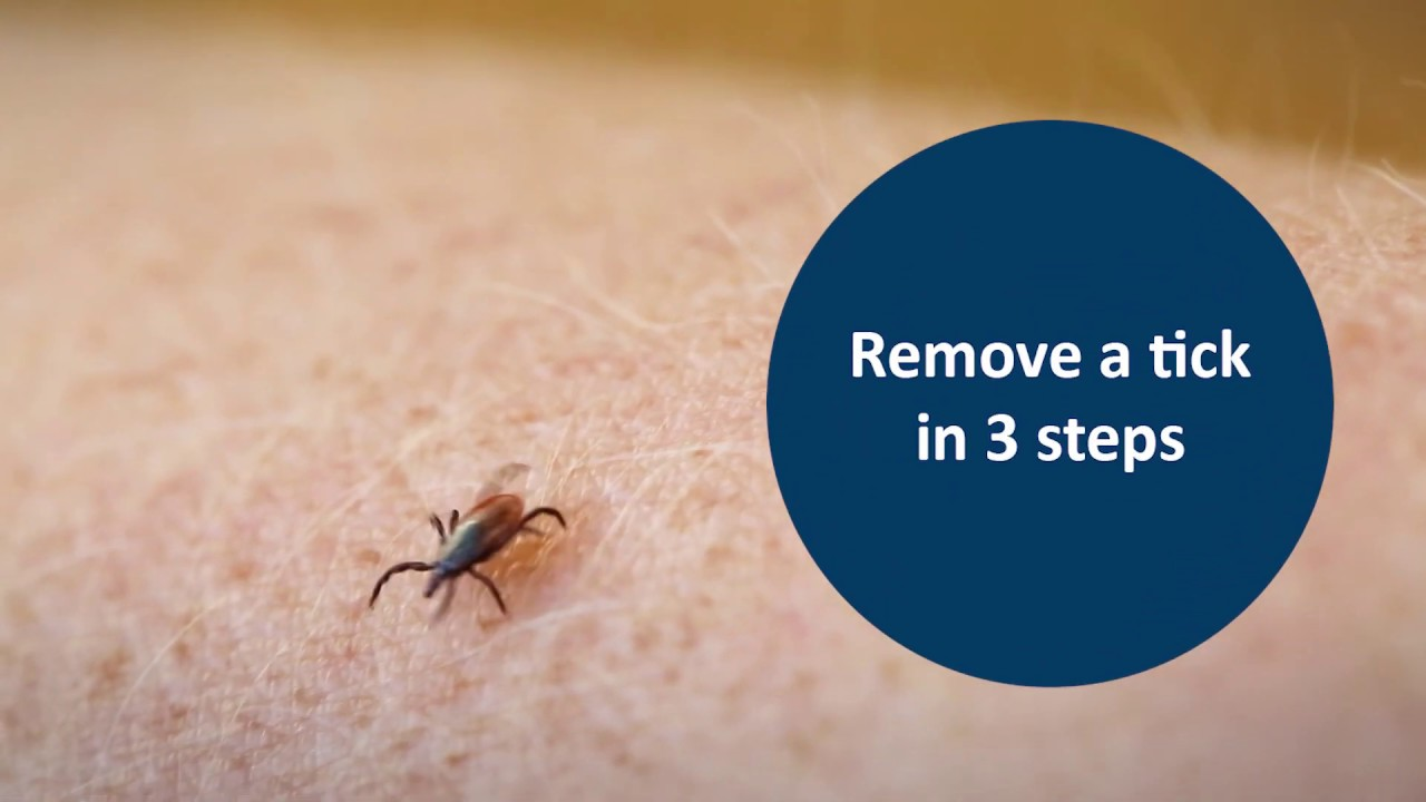 Remove a tick in 18 steps