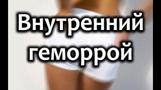 Внутренний геморрой: симптомы и лечение