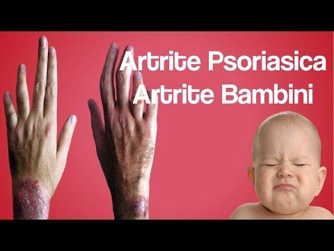 artrite-psoriasica,-artrite-bambini,-artrite-e-artrosi,-artrite-idiopatica-giovanile-cura