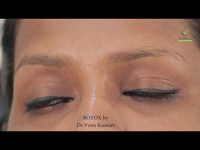 Dr.Venus Botulinum toxin for Glabellar