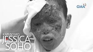Kapuso Mo, Jessica Soho: Binata sa La Union, nasunog ang mukha matapos sabuyan ng asido!