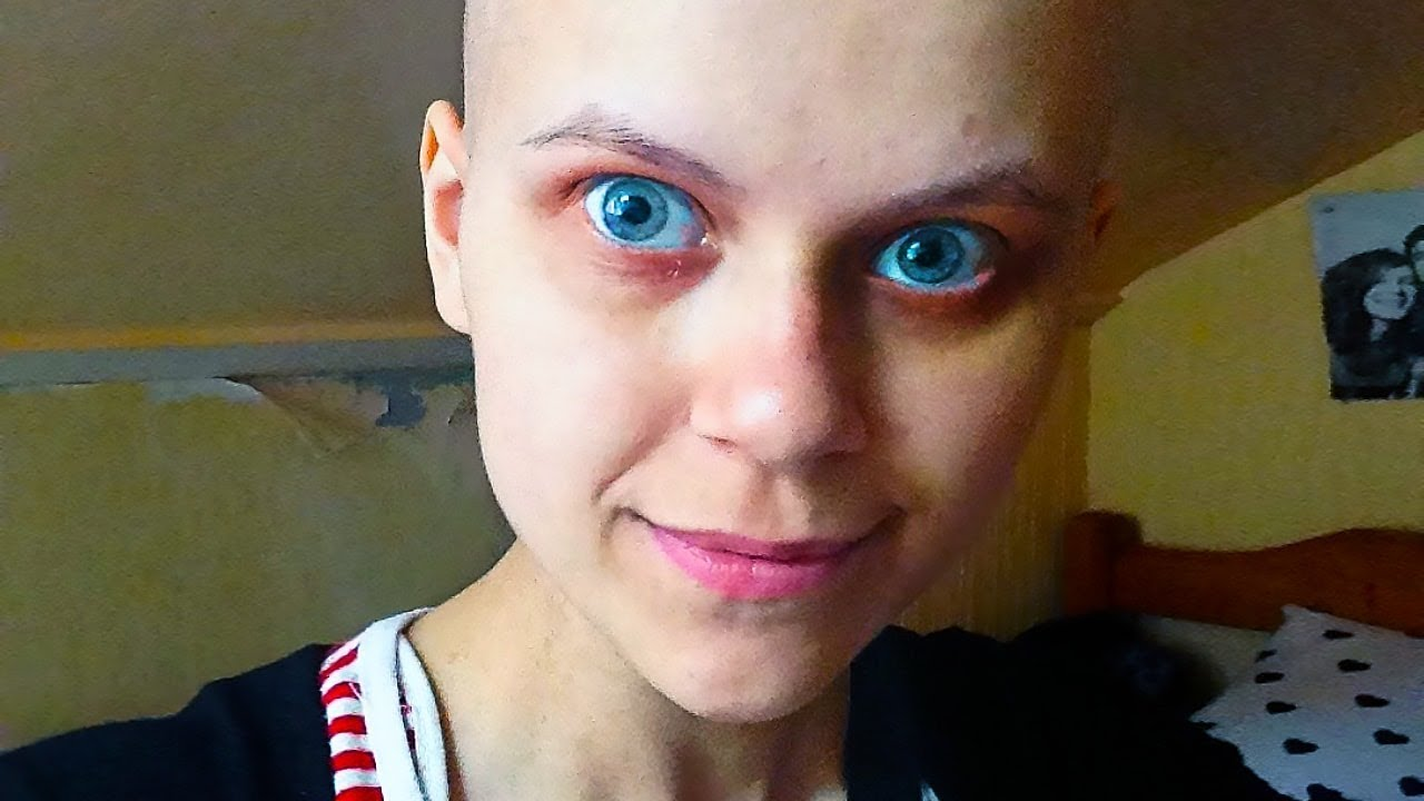 Cancer faker caught after camera exposed her awful fake