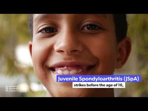 Juvenile Spondyloarthritis (JSpA) Website Launch