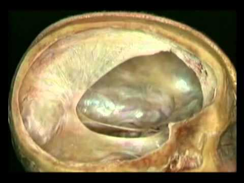 Оболочки головного мозга (Атлас Окланда)