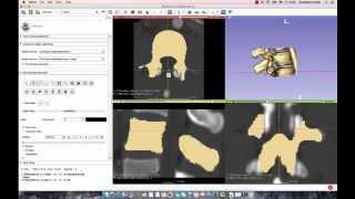 3D Slicer Tutorial: How to Segment a Lumbar Vertebrae