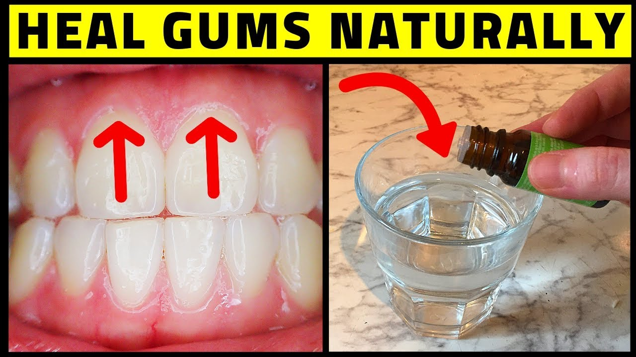Cure Periodontal Disease At Home - Heal Gums Naturally ...
