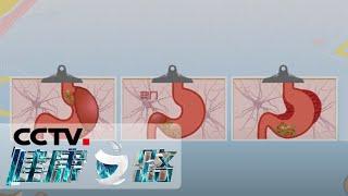 《健康之路》 20200528 小心胃癌来偷袭| CCTV科教