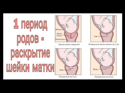 1 период родов (раскрытие шейки матки)!