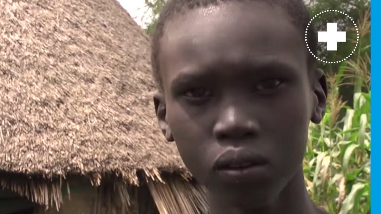 """Soudan du Sud : """"On mange de l'herbe parce qu'il n'y a pas de nourriture"""""""