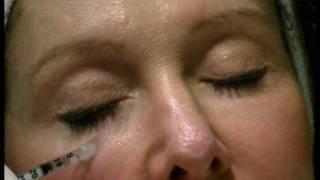 Rejuvenate under eye hollows, tear troughs and dark circles