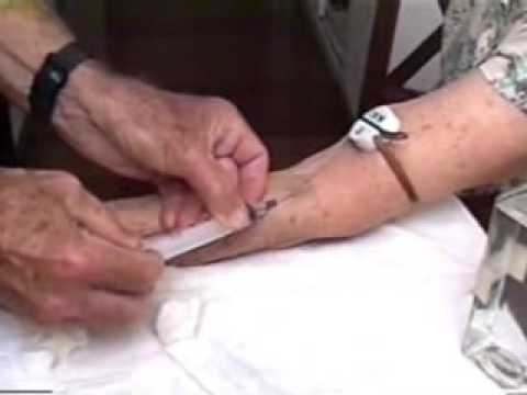 video autohemoterapia