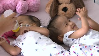 Formerly Conjoined Twins Giggle Together After Successful Separation Surgery