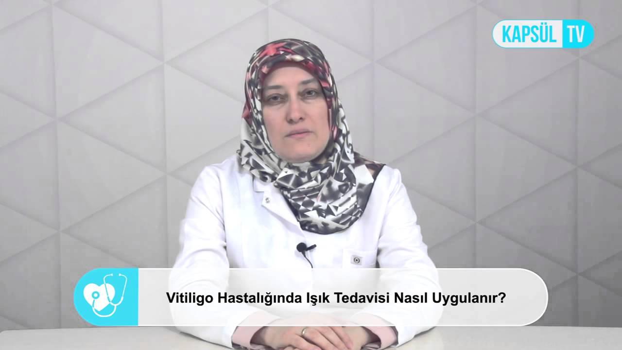 Vitiligo Nasıl Geçer: Vitiligoya Bitkisel Çözüm