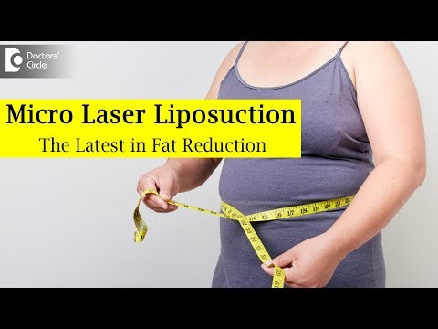 what-is-micro-laser-liposuction?- -laser-fat-removal---dr.-srikanth-v- -doctors-circle