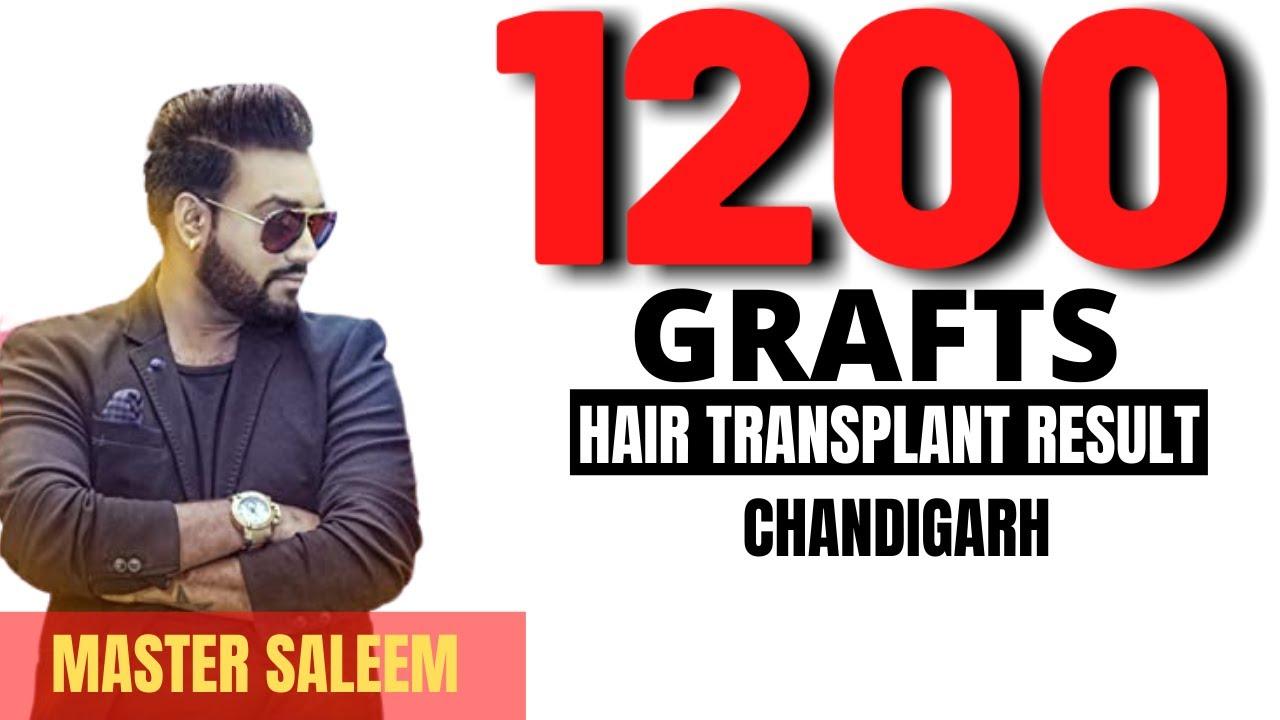 Top Punjabi Singer hair transplant result | 1200 grafts at Chandigarh, India