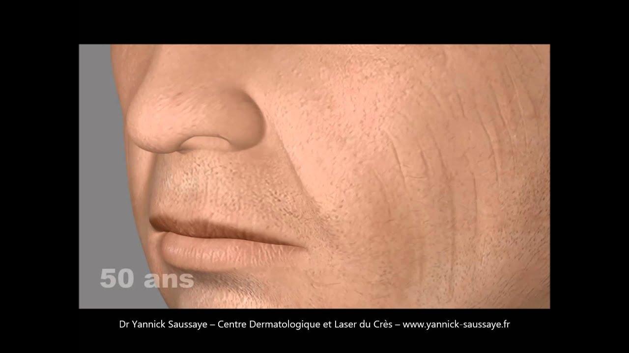 vieillissement tiers moyen visage homme traiter. Black Bedroom Furniture Sets. Home Design Ideas