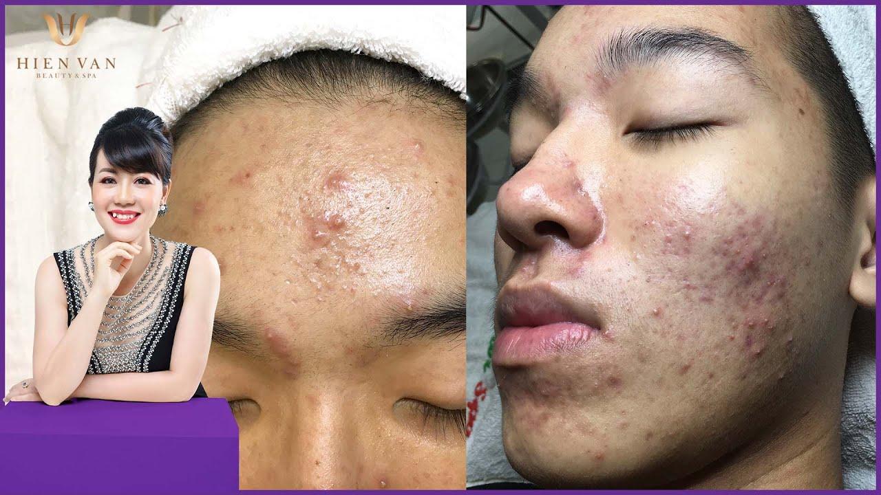 Cyst Acne popping | Điều trị mụn hiệu quả số 1 TPHCM |Hiền Vân Spa |Hoàng Bảo Ngọc P3 | 556