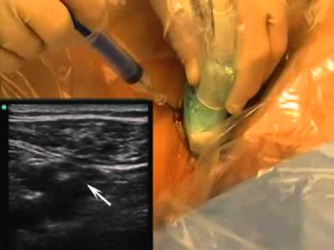 PLACEMENT OF A FEMORAL VENOUS CATHETER