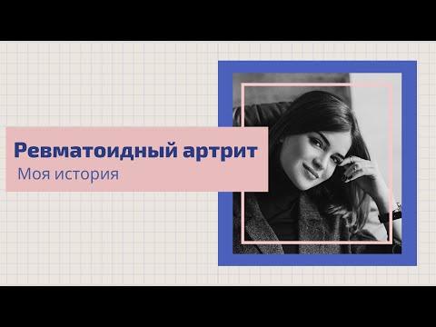 Моя история: Татьяна Бобошко о ревматоидном артрите, важности ранней диагностики и ремиссии