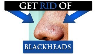 How to get rid of BLACKHEADS on your nose | 7 TIPS FOR MEN