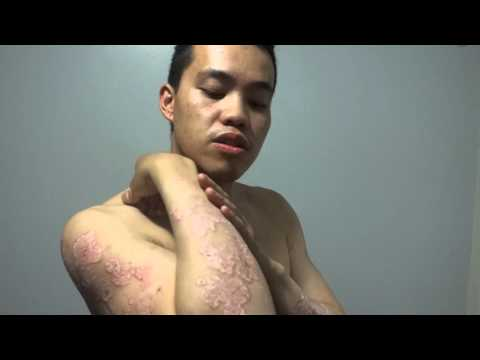 Psoriasis - Consentyx Journey day 1 Biological treatment