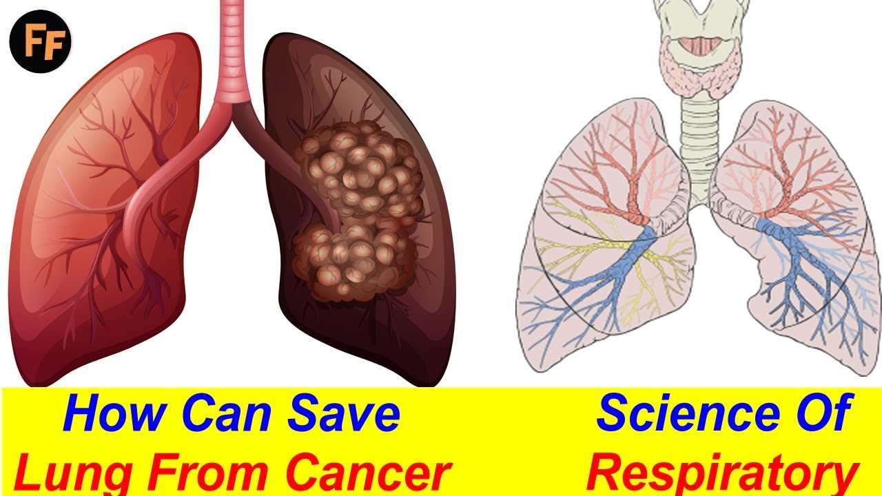 Lung Cancer – Early Signs Of Lung Cancer – Anatomy Of Lung ...