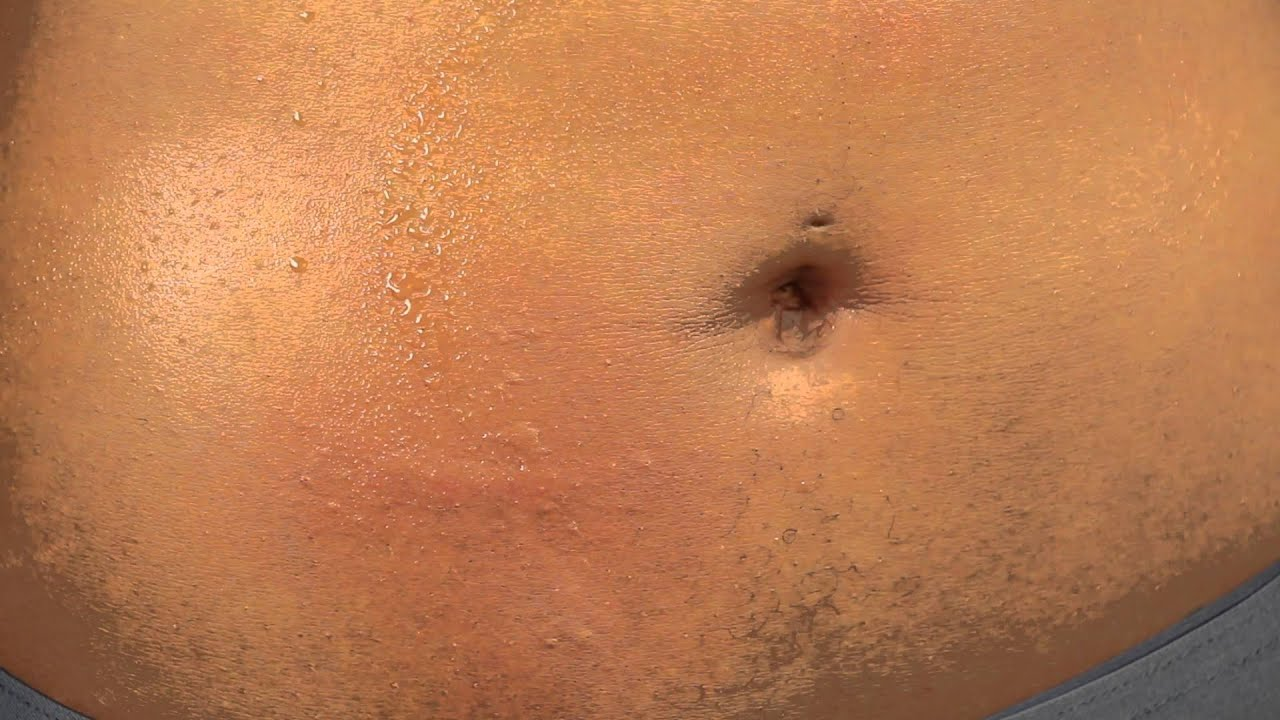 Tiny Itchy Bumps On Right Side Stomach Symptoms - HealthTap
